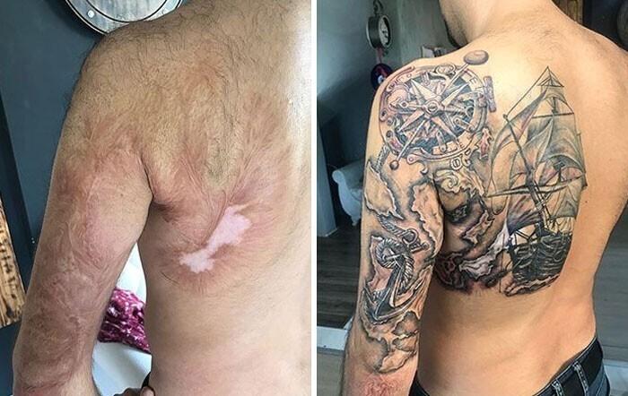 20+ людей, которые попросили тату-мастера перекрыть их шрамы - и получилось круто