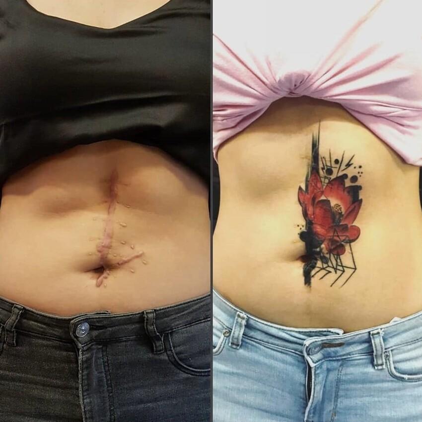16 татуировок поверх шрамов, с помощью которых люди превратили свои изъяны в изюминку